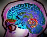 NOPOIN Brain Metal 2