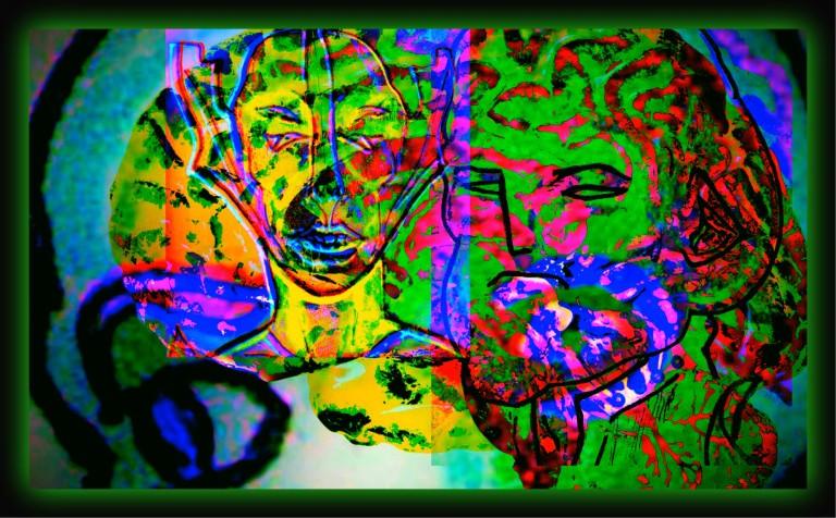 NOPOIN Brainstorm